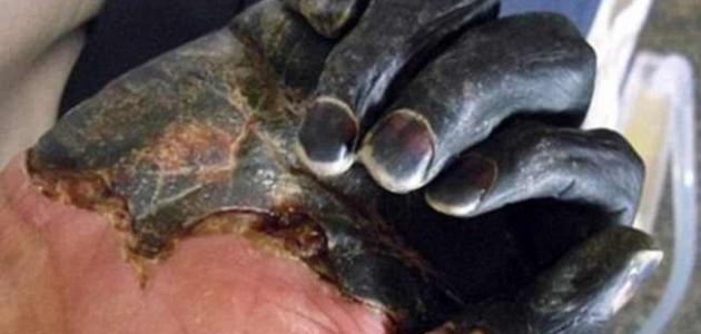 صورة مرض الطاعون , اعراض واسباب مرض الطاعون