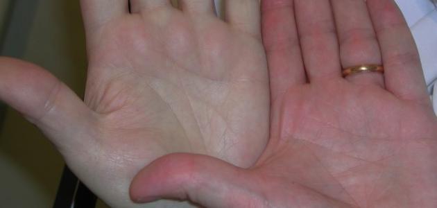 صورة مرض فقر الدم , كيفيه علاج الانيميا
