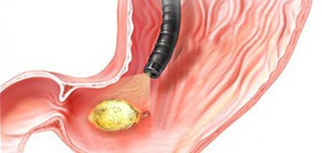 صورة اعراض جرثومة المعدة , ما هى جرثومة المعدة وما اعراضها