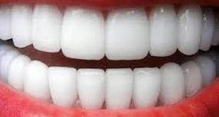 خلطات تبيض الاسنان , اعرف اشهر خلطة للحصول علي اسنان بيضاء