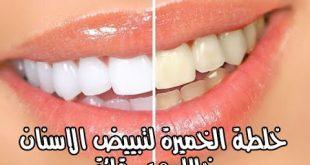 كيفية تبييض الاسنان , وصفة تبيض الاسنان