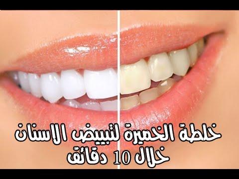 صورة كيفية تبييض الاسنان , وصفة تبيض الاسنان