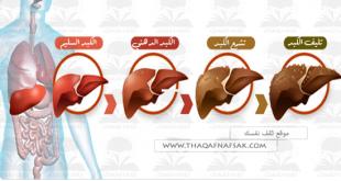 علاج تليف الكبد , علاج تشمع الكبد