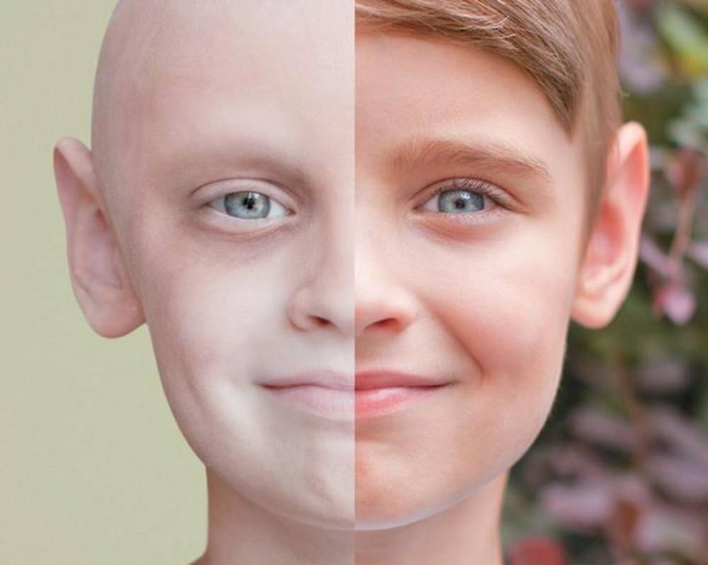 صور علاج مرض السرطان , علاج قوى وفعال لمرضى السرطان