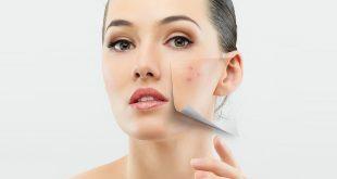 صورة توحيد لون البشرة , الحصول على بشرة خالية من العيوب