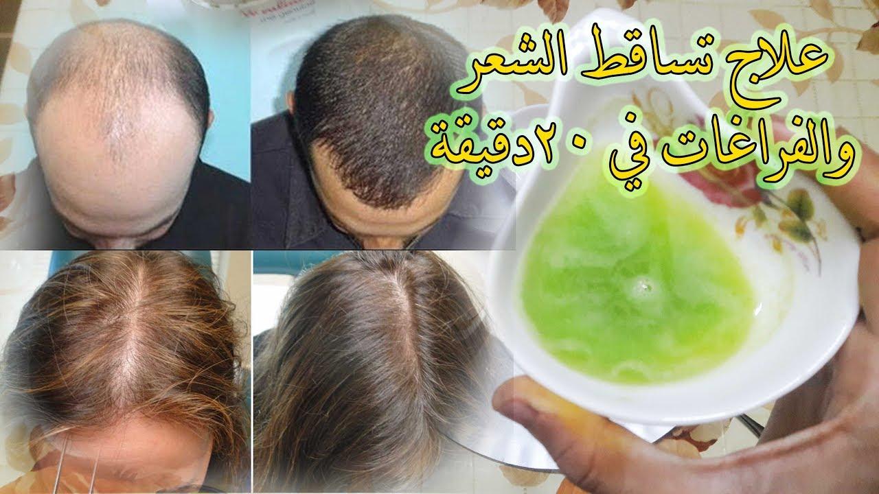 صورة علاج لتساقط الشعر , طرق فعالة لعلاج الشعر المتساقط