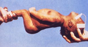 صورة مرض الكزاز , ما لم تعرفه من قبل عن مرض الكزاز
