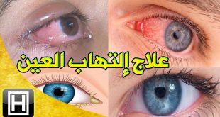 صورة علاج العين , لابطال العين والحسد خطوات سريعه