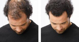 صور علاج تساقط الشعر للرجال , اسباب وعلاج تساقط الشعر عند الرجال