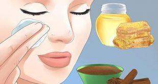 صورة سبب حبوب الوجه , ماهى اسباب التهاب وجهى با الحبوب
