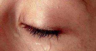 صورة ما اسباب دموع العين , عينى تدمع كثيرا