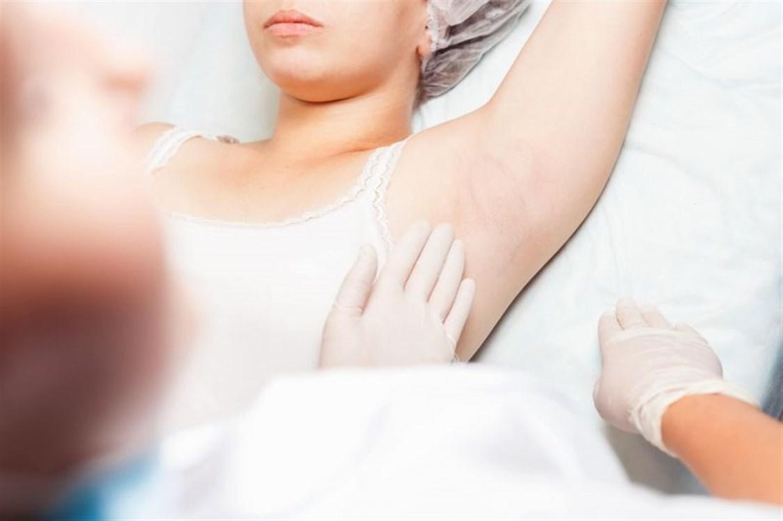 صورة اعراض سرطان الابط , هل هو حميد ام خبيث