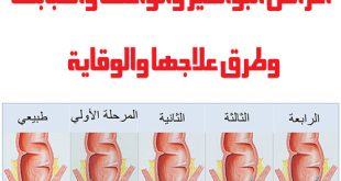 صور ماهي اعراض البواسير , اكثر الامراض الما