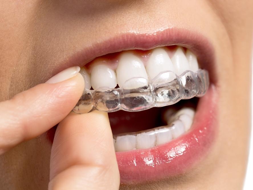 صور جهاز تبييض الاسنان , كيفية تبيض الاسنان