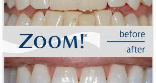 صورة جهاز تبييض الاسنان , كيفية تبيض الاسنان