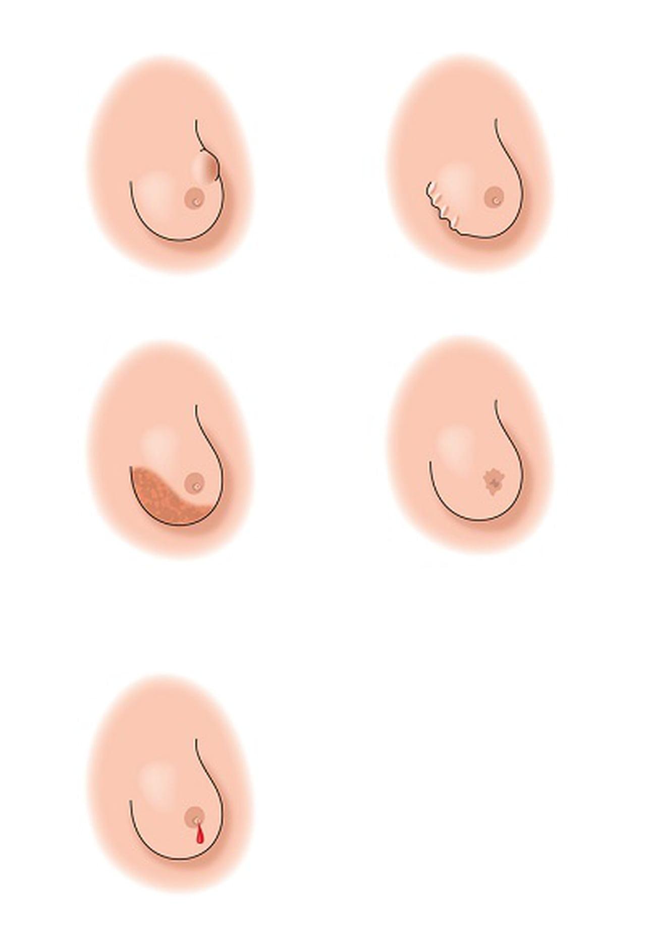 صورة انواع ثدي المراة بالصور , معلومات علميه عن ثدي المراه بالصور