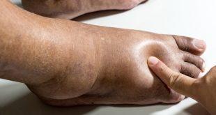 كيفية التخلص من السوائل في الجسم , علاج احتباس السوائل في الجسم